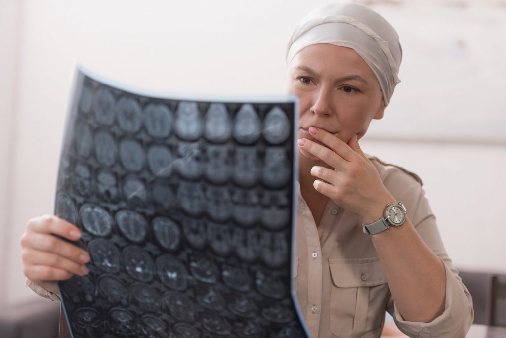 Why Does Chemotherapy Cause Hair Loss? – Fashion Digger